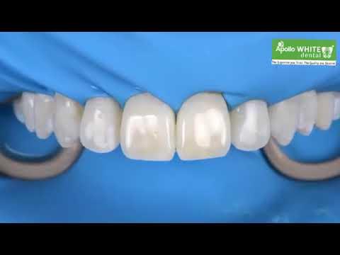 dental-flurosis-treatment-&-cost-|-apollo-white-dental