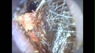 Ear wax removal Unbelievable what comes out,