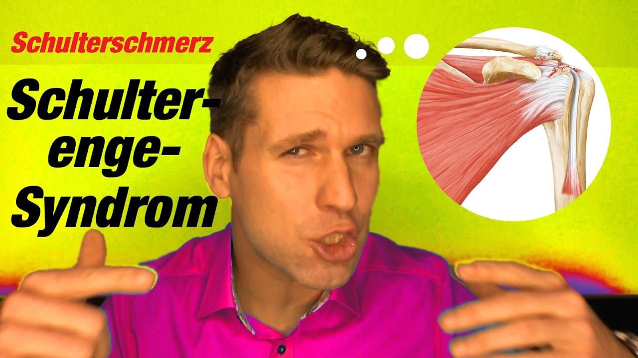 Schulterschmerzen und Impingementsyndrom - YouTube