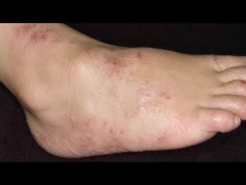 Дерматит на ногах (ступнях ног): лечение, причины, симптомы, профилактика, народные средства