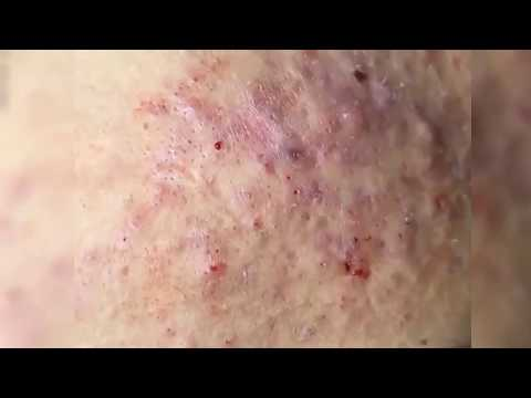 How to Get Rid of Blackheads & Whiteheads on The Face Easy (Part 02)