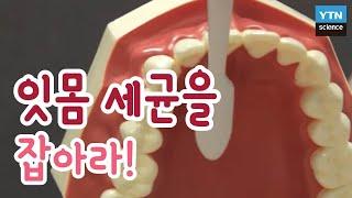 [황금나침반] 잇몸 세균을 잡아라 / YTN 사이언스