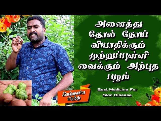 Skin Infection And Disease Treatment Tamil | Skin Care Tips Tamil