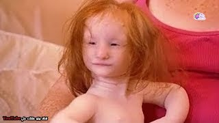 أصغر طفلة فى العالم | لا يصدق الاطباء أنها حية حتى الأن ! - فكيف حدث ذلك ؟!