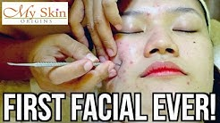 hqdefault - Spa Sydell Acne Facial
