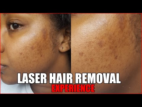 They Burnt My Face Laser Hair Removal Experience Ukafrolista Youtube