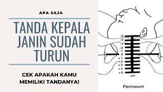 Pengobatan Patah Tulang Al-Fadhilah (Terbaik & Terpercaya Di Jakarta) Al-fadhilah TV adalah channel .