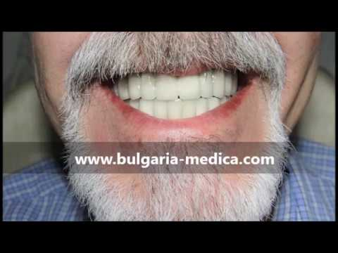 Download Full mouth reconstruction in Bulgaria