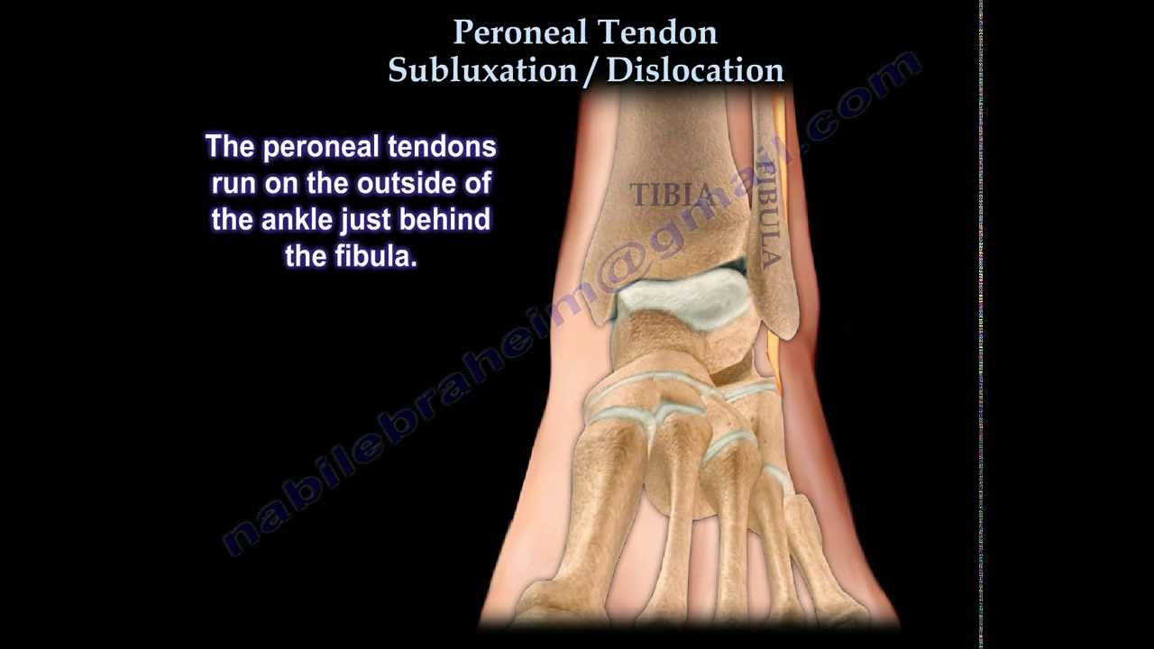 Peroneal Tendon Subluxation / Dislocation - Everything You Need To ...