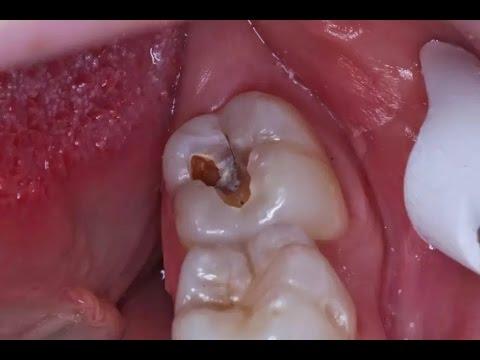 Tak Terduga 5 Cara Merawat Gigi Berlubang Yang Ampuh Dan Alami