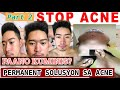 PAANO MAGING CLEAR SKIN PERMANENTLY -   PART 2 UPDATES   ISOTRETINOIN TREATMENT  