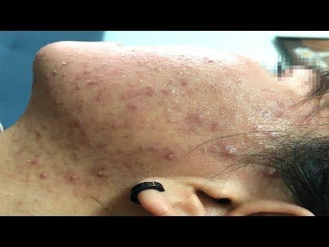 A Difficult Acne Case | Một Ca Mụn Khó