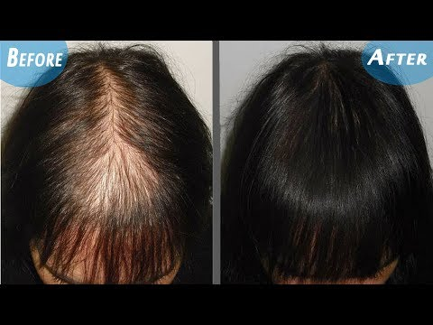 Magical Hair Re-Growth Serum,100% Effective for He & She | One Odd Trick To Regrow Your Hair In Days