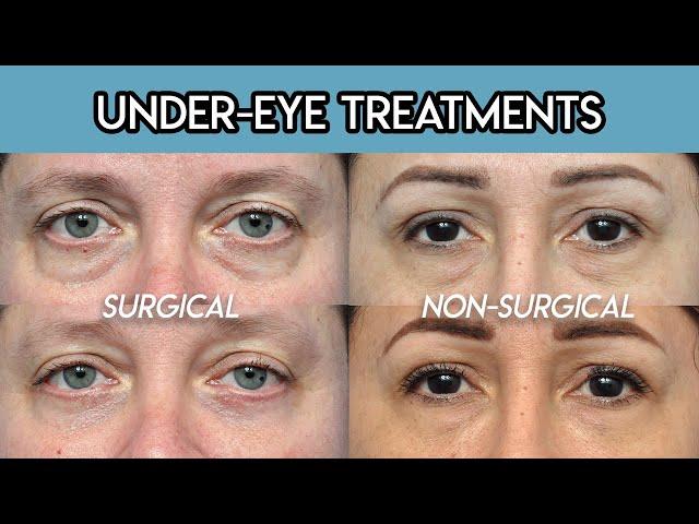 Under Eye Treatments