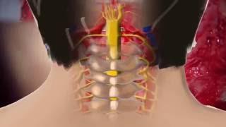 Chiari Malformasyonu; Dekompresyon Duraplasti-Temel Spinal Cerrahiler(8/27)-Editör: Ali Fahir ÖZER