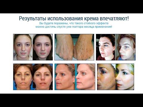 Крем сияние кожи от пигментных пятен