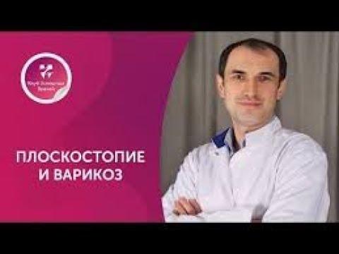 Плоскостопие и варикоз. Флеболог. Москва.