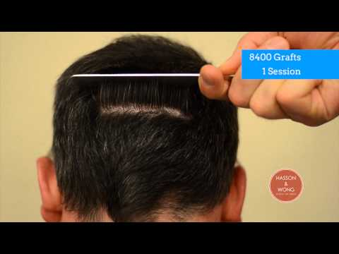 hair transplant results scar focus 00 8400