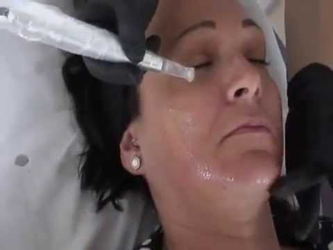 Meso Vytal Digital Skin Needling