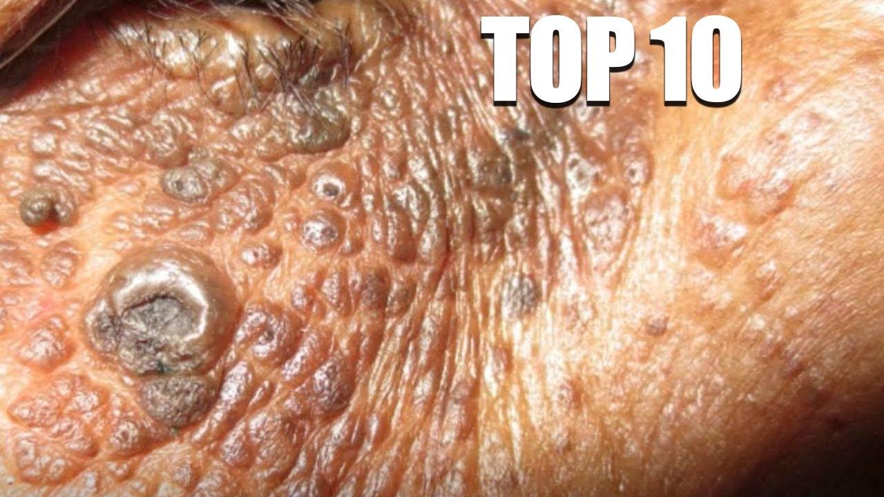 Top 10 Pimple Poppers of 2020   Dr. Sandra Lee to Dr. Vikram