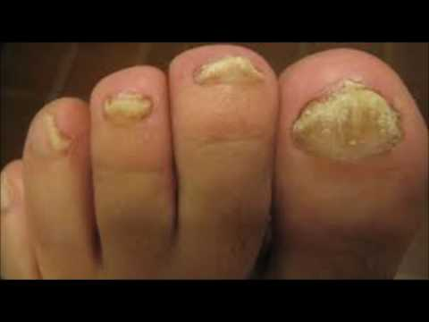 Fungal Nail Infection Laser Treatment Melbourne