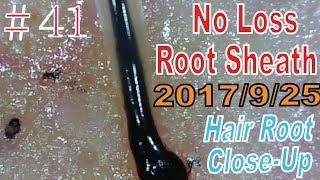 Hair Root / Root Sheath Close Up #41【 No Loss Root Sheath】