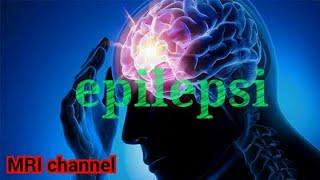 """EPILEPSI KEBAL OBAT """" 1. Mengapa pasien Epilepsi bisa kebal obat? Berapa maksimal obat yang boleh di."""