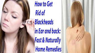 How to get rid off black head for ear and back home remides