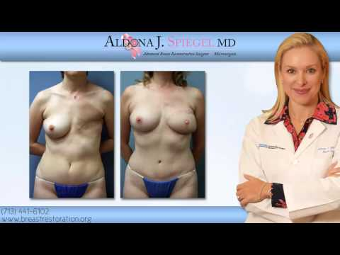Before And After Photos Of DIEP Flap Breast Reconstruction - Houston, TX