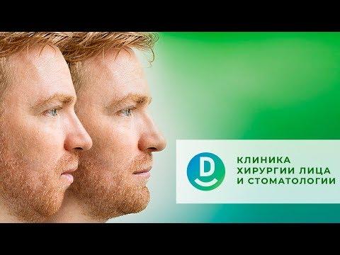 Достижения челюстно-лицевой хирургии | Клиника хирургии лица Дентал Сервис | Дентал ТВ
