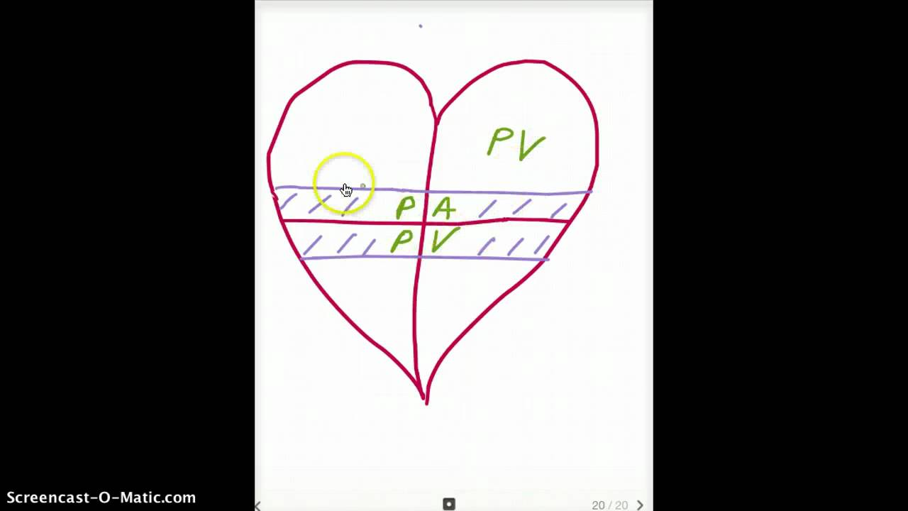 Easy ways to remember heart embryology derivatives youtube ccuart Image collections