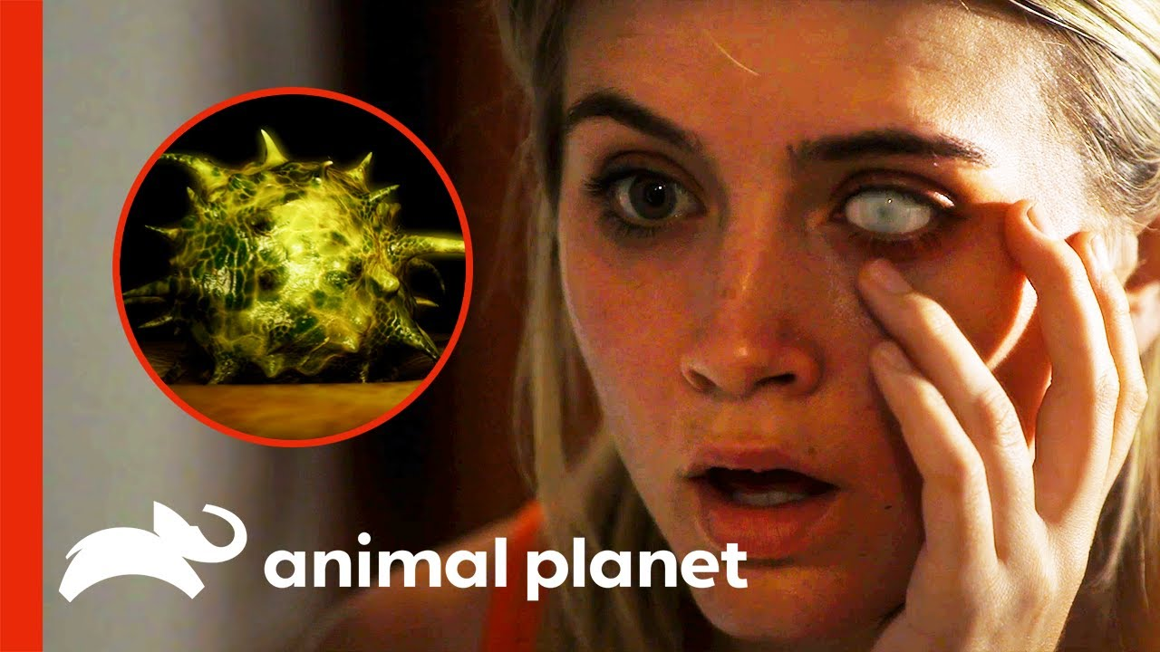 Download Contact Lens Parasite Almost Blinds Woman | Monsters Inside Me