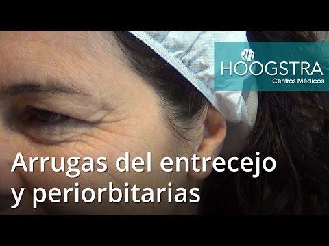 Arrugas del entrecejo y periorbitarias (16085)