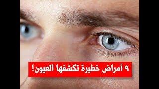 9 أمراض خطيرة تكشفها العيون | 9 علامات في عينك تخبرك بإصابتك بأحد الأمراض الخطيرة
