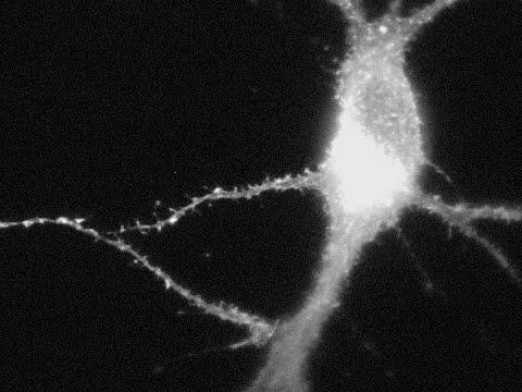 2-Photon Microscope Imaging Neuron Actin-GFP