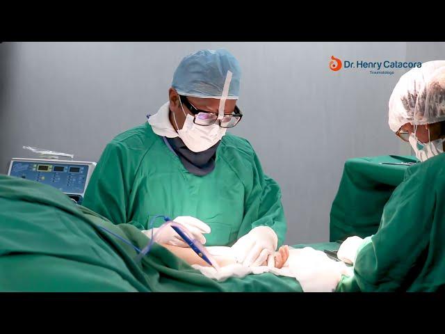 Cirugía de Muñeca - Dr. Henry Catacora - Traumatólogo