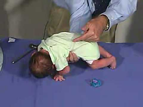 Galant Reflex physical exam -Newborn...