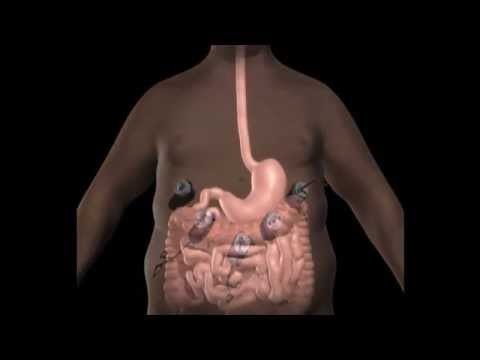 Treatments for Obesity - Sleeve Gastrectomy