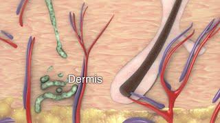 Haut-Biopsie