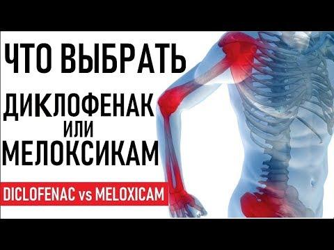 Мелоксикам или Диклофенак что лучше | СОВЕТЫ | Diclofenac (Voltaren) versus Meloxicam (Mobic)
