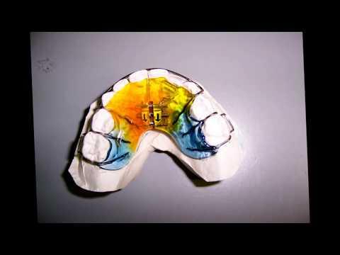 orthodonticlab Lyronis Κινητά ορθοδοντικά μηχανήματα.wmv