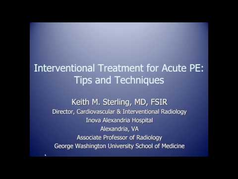 Webinar Recording: Tips & Techniques in Interventional PE Treatment