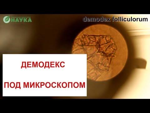 Подкожный клещ Демодекс под микроскопом 🙈🔬 Demodex Follicles Фото + Видео