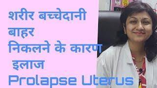 शरीर बच्चेदानी बाहर निकलने के कारण इलाज Prolapse Uterus Bachedane bahar aana गर्भाशय बाहर