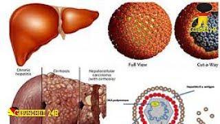 Hepatitis: Therapie