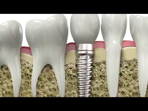 FAQ - What is a dental implant? | Luminous Dental Studio