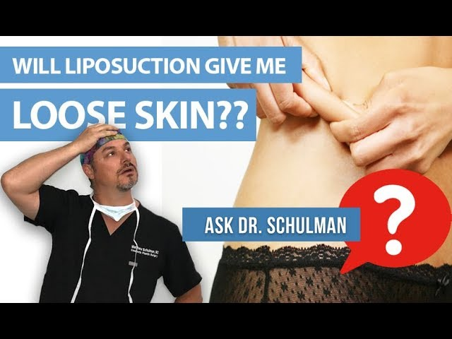 Will Liposuction Give Me Loose Skin Ask Dr Schulman Youtube