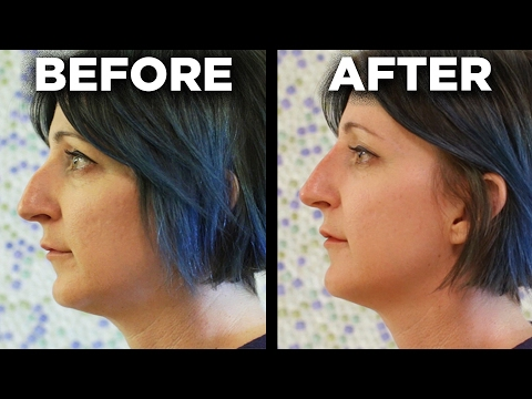 Thumbnail: People Get The 5-Minute Nose Job