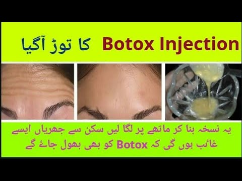 1-economical-way-to-rabidly-remove-forehead-wrinkle-and-line-with-no-botox-injection-💉-by-humna