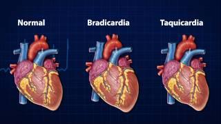 Que possui cardíaco condição debilitante para distúrbio ou qual paciente mais o é o o